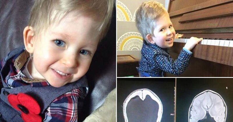 Мальчик, родившийся без мозга, опроверг прогнозы врачей Ноа Уолл, воля к жизни, врожденные пороки, интересно, медицина, мозг, невероятно, чудеса физиологии