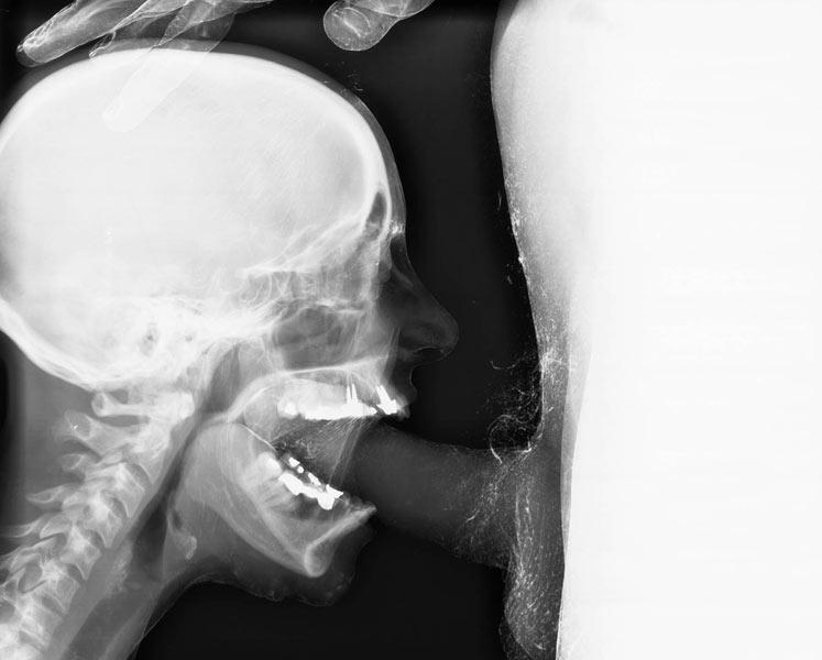 Порно минет под рентгеном — 15