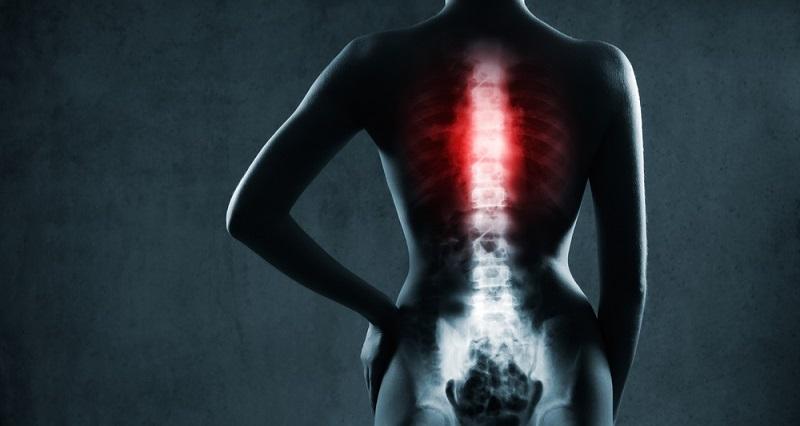 позвоночник рентген норма