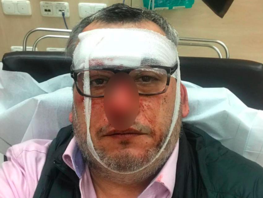 Немецкие врачи выставили изуродованную звезду НТВ в ужасном состоянии на улицу — «Лечитесь по месту жительства»