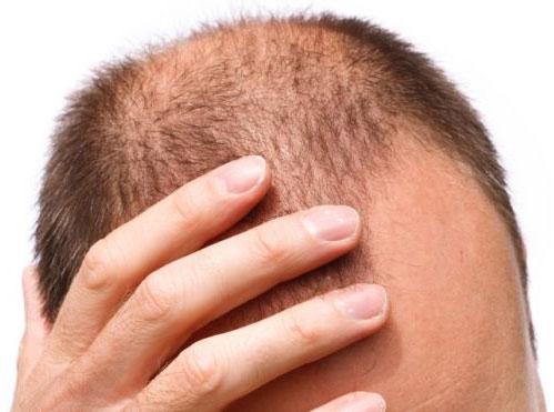 Выпадение волос, облысение – я нашел решение этой проблемы.
