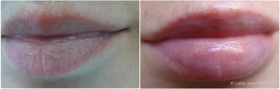Метилурациловая мазь. Уход за убитыми губами