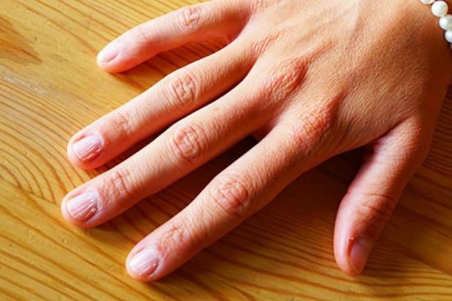 Фото проблем с ногтями