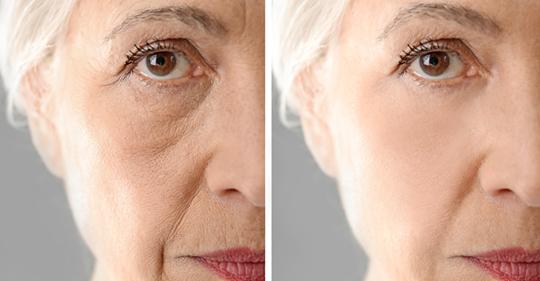 15 продуктов, которые помогают женщинам замедлять появление признаков старения