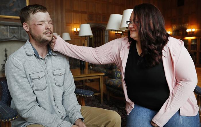 Американка впервые встретилась с мужчиной, которому пересадили лицо ее погибшего мужа