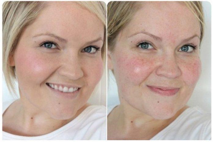 Как добиться ровного цвета лица без тонального крема