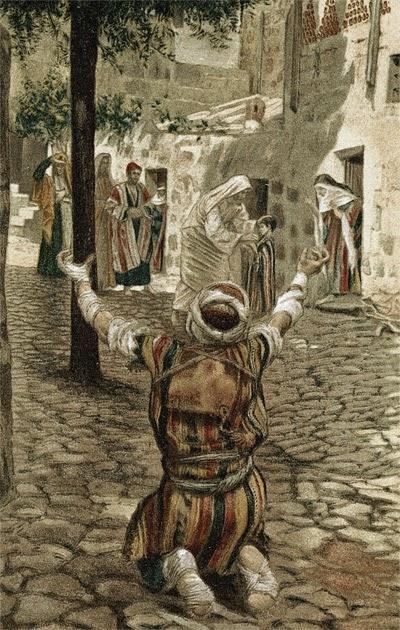 Проказа: история болезни и средневековых заблуждений