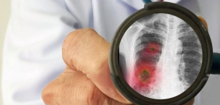 Учёные: Пневмонию вызывает не коронавирус, а избыток железа в организме