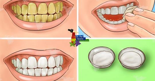 Гарантировано. Отбеливайте желтые зубы менее, чем за 2 минуты