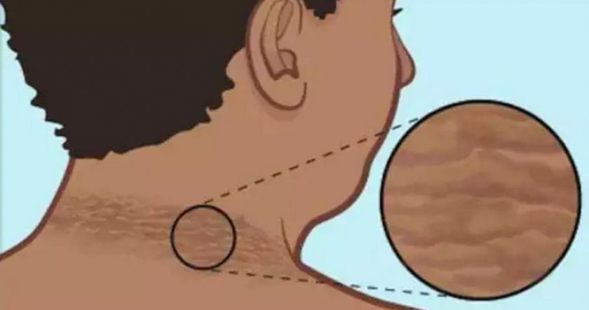 Как избавиться от потемневшей кожи шеи с помощью 5 домашних средств