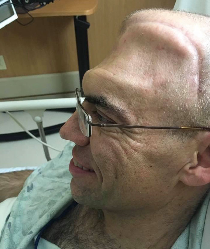 Guy Who Was Supposed To Live For 6 Years After Brain Cancer Diagnosis, Lives For 20+ Years, Beats It 4 Times
