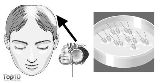Домашние средства для борьбы с преждевременным поседением волос