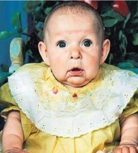 Увидев свою новорожденную дочь, отец сразу ушел из семьи. Крошка старела буквально  на глазах...
