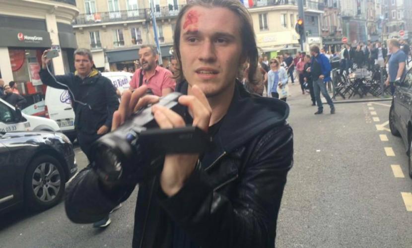 Блогер Никита Панасюк госпитализирован после нападения английских фанатов в Лилле