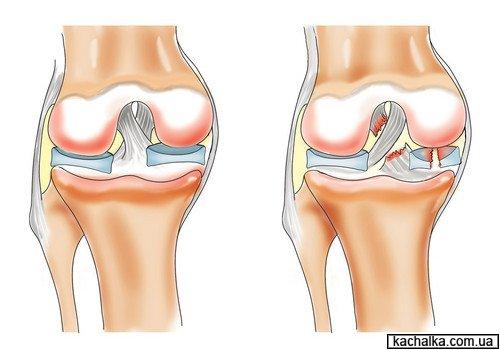 Лечение суставов: методы, пр…