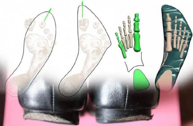 Александр Киселёв: Как исправить плоскостопие и косолапие