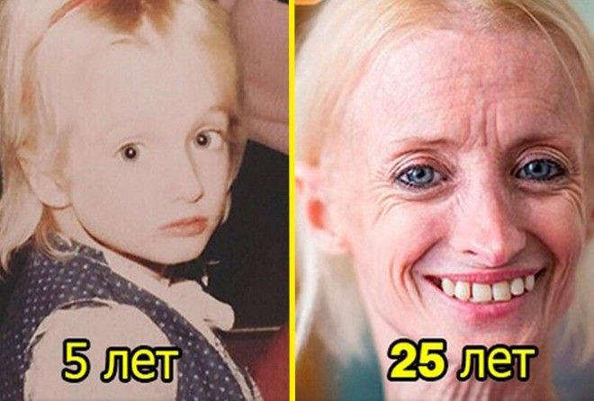 Эта женщина стареет в 8 раз …