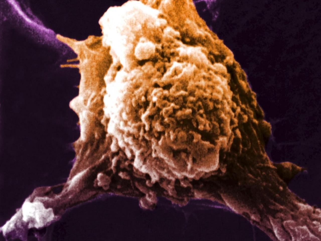 Первые тесты универсальной вакцины против рака прошли успешно