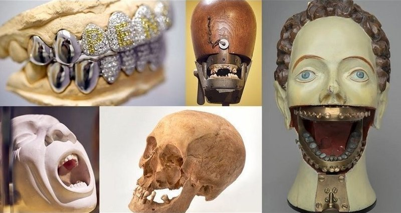 Как рвали зубы раньше: искусство и стоматология