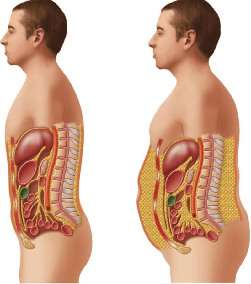 Как правильно похудеть: надолго и без проблем