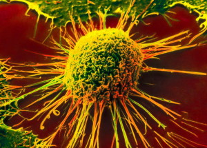 5 способов снизить риск рака…