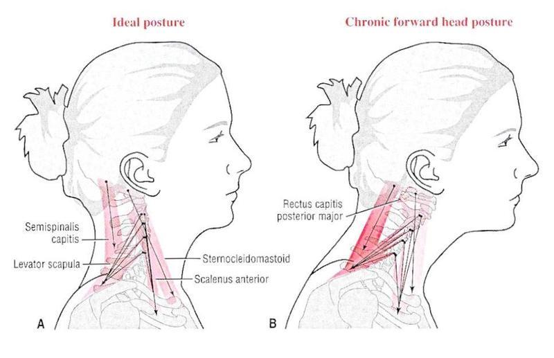 КИСТОЧКИ: Упражнение, которое вернет молодость вашей шее и лицу