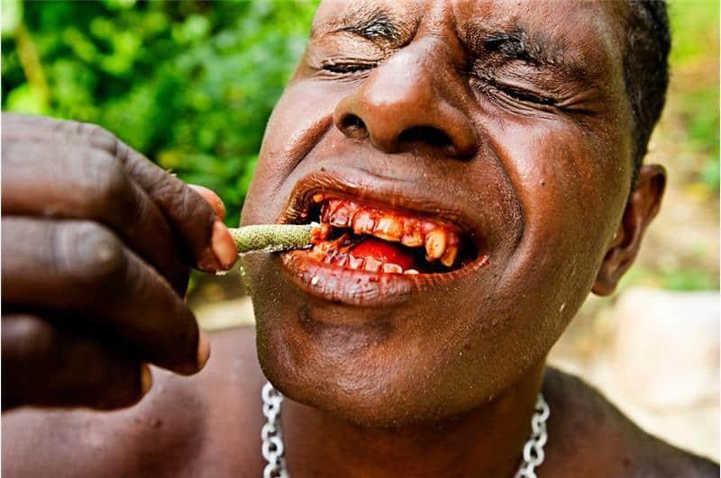 Человек с самыми крепкими зубами