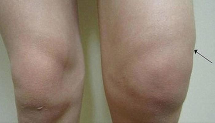 Мучат боли в коленях? Попроб…
