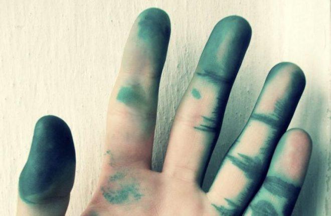 7 способов быстро отмыть зеленку с кожи