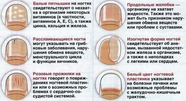 Белые полоски у основания ногтя