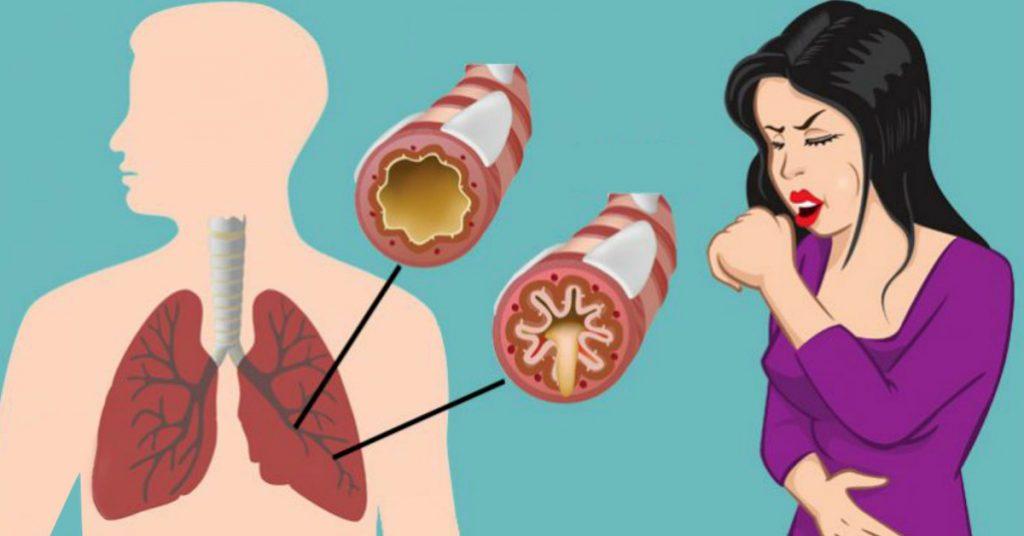 Как устранить слизь и мокроту из горла и груди (мгновенный результат)