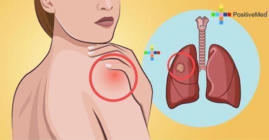 10 ранних симптомов рака легких, которые нельзя оставлять без внимания