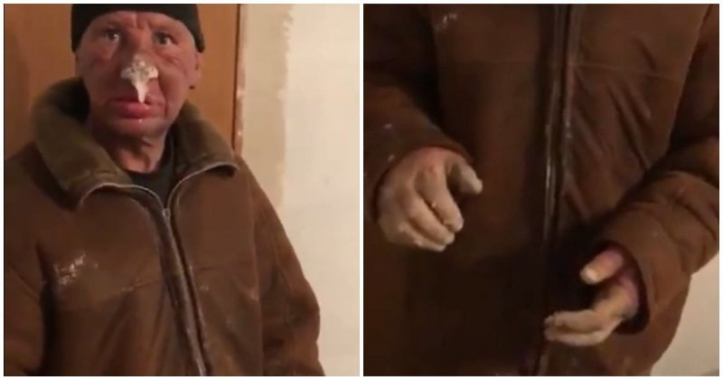 Житель Казахстана получил жуткое обморожения после недели, проведенной на улице ампутация, бездомный, видео, зима, казахстан, мороз, обморожение, улица, холод