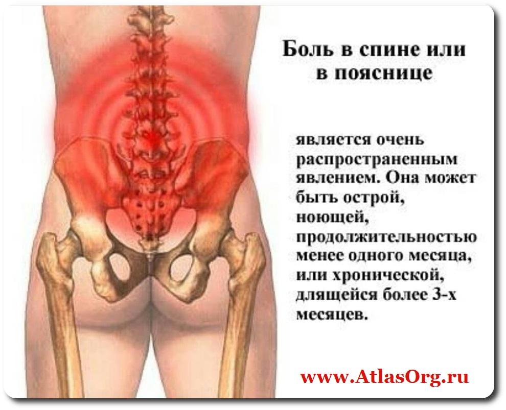 Острая боль в пояснице лечение в домашних условиях