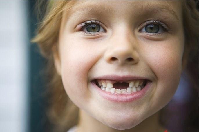 Прорезывание постоянных зубов. Сроки и проблемы. Чем опасна газировка?