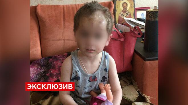 Под Москвой органы опеки изъяли избитого приёмного ребёнка у сугубо положительной семьи няни и конвоира