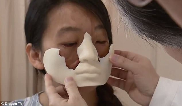 Китаянке с деформированным лицом врачи выращивают новое лицо на груди