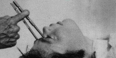 10 самых сумасшедших «лекарств» за всю историю медицины