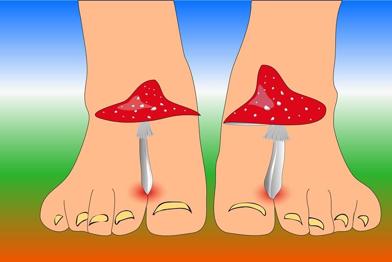 Вот как вылечить грибок на ногах с помощью эфирного масла