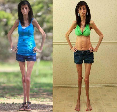 Как сделать себя худой на