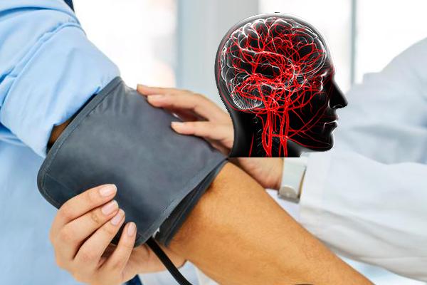 Измерение давления может предотвратить инсульт