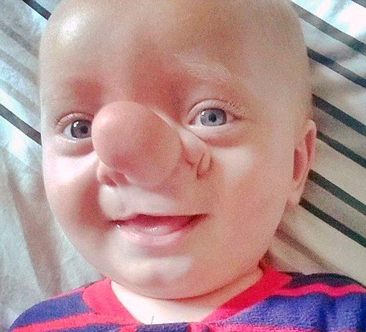 Редчайший случай — малыш Пиноккио