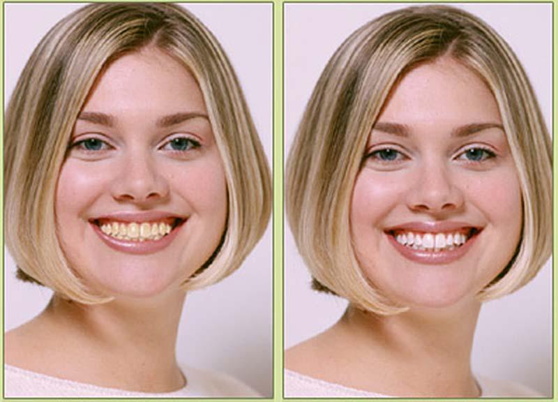 Как сделать себе красивую улыбку 759
