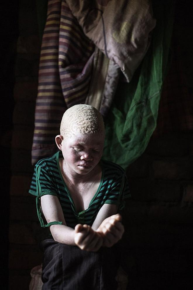 альбиносы - преследуемые белые-12