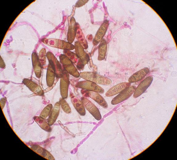 Как выглядит грибок ногтей под микроскопом
