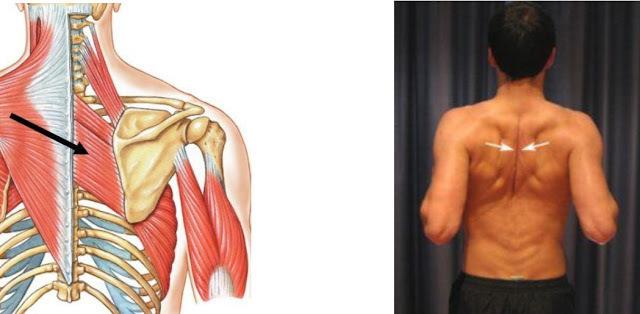 Главная мышца антисутулости: ромбовидная мышца