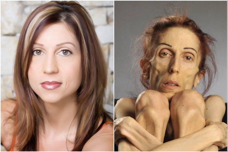 Как выглядит женщина, которая весит всего 18 кг анорексия, вес, внешность, красота, люди, спорт, фигура