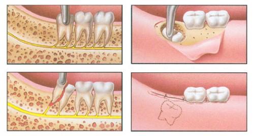 10 осложнений, которые могут возникнуть при удалении зубов