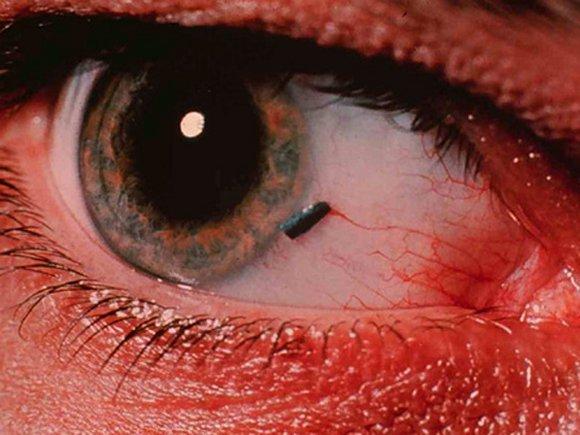 Попала стальная стружка в глаз что делать