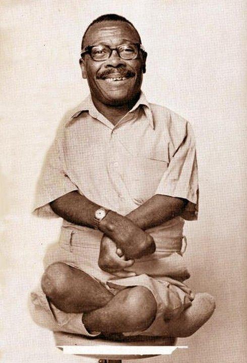 Отис Джордан (Otis Jordan), мальчик – лягушка. «Цирк уродов»: Страшное зрелище (фото)